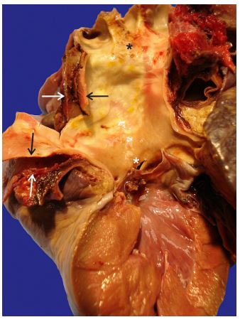 A 4-mm intimal tear was identified within the non-coronary aortic valve sinus