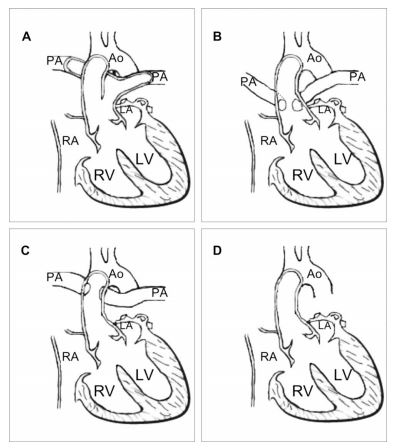 Figure 3 Classification of truncus arteriosus type, according to Collet and Edwards.5