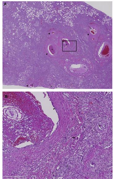 Histological sections of lung tissue from a dog with severe A. vasorum infection