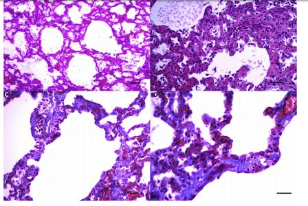Histopathology of dog, diagnosed as idiopathic interstitial pulmonary fibrosis