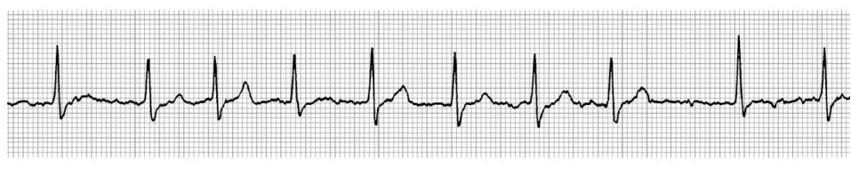 Lead II of a six lead paper trace ECG (20 mm/mV, 50 mm/s) with the cat in right lateral recumbency revealed variable R to R intervals and no visible P waves