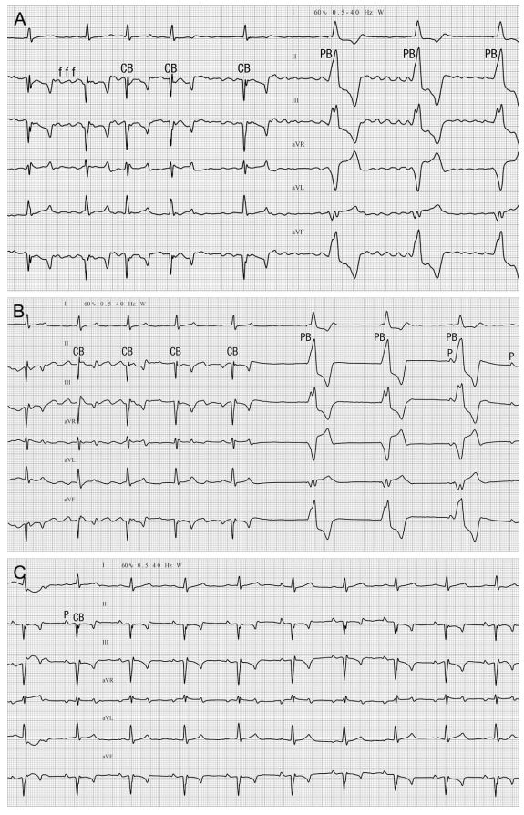 Six lead electrocardiogram recorded from a dog during pacemaker implantation for treatment of collapsing with long sinus pauses
