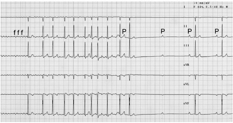 Six lead electrocardiogram recorded from a dog with atrial fibrillation (AF) that was associated with circumstances of elevated parasympathetic tone