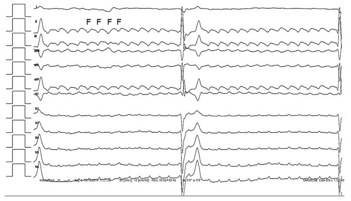 Twelve-lead surface ECG of a dog referred for repeated episodes of exercise-induced syncope