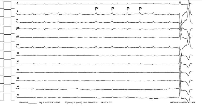 Twelve-lead surface ECG recorded from a dog with sinus arrhythmia and third-degree atrioventricular block